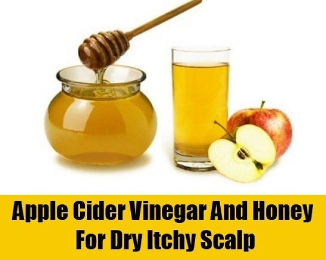 Apple cider and honey scalp rub for relieving symptoms of dry scalp