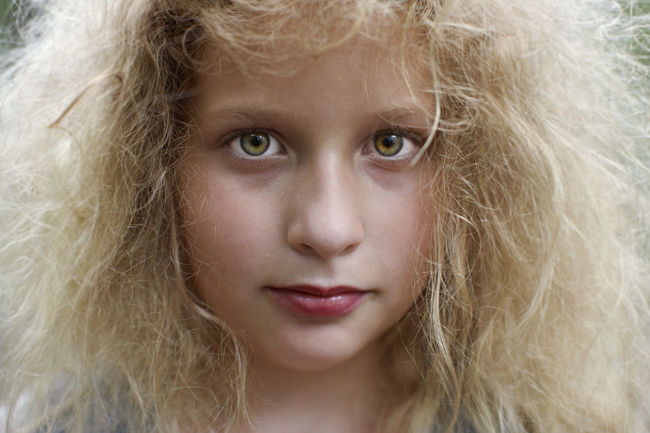 Frizzy hair is an inherited trait and so it often occurs in families that have very fine hair